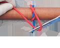 Surgical Ligature, Instrument Technique