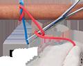 Surgical Tie, Instrument Technique